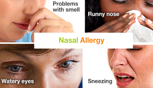 Nasal-allergy-symptoms